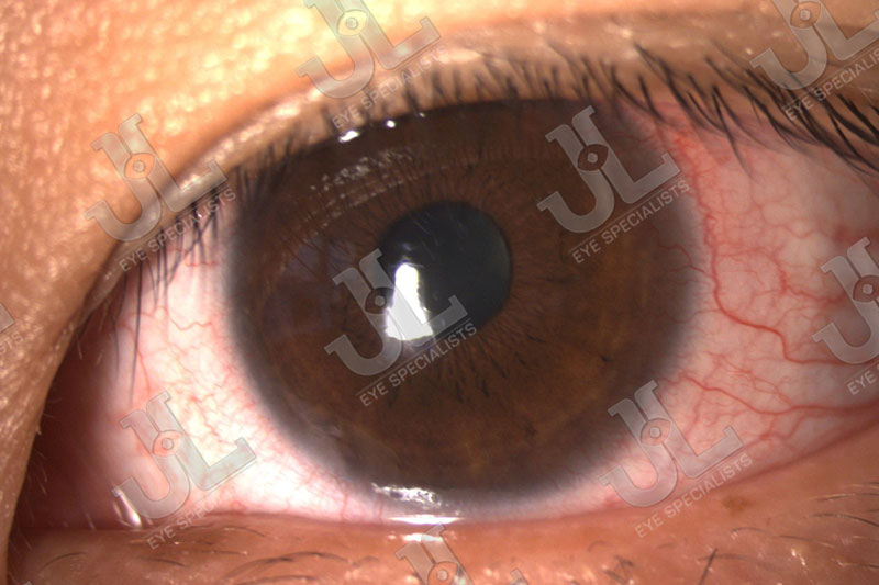 Dr Jimmy Lim JL Eye Specialists Clinic in Singapore Eye Care Contact Lens