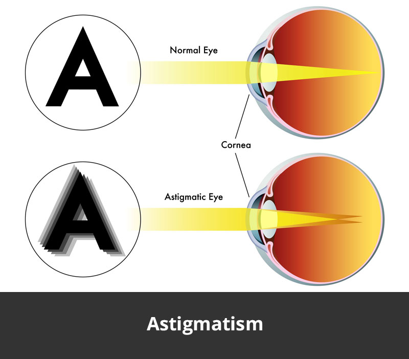 jl-eye-specialists-clinic-singapore-astigmatism