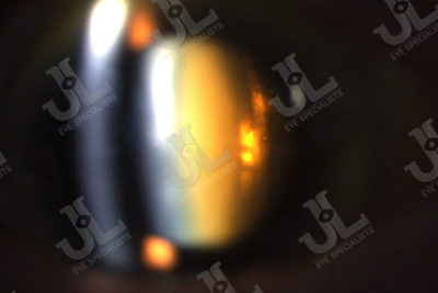 Dr Jimmy Lim JL Eye Specialists Phacoemulsification Catarct Eye Imaging Brown