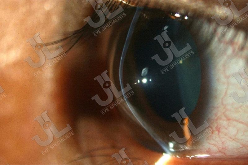 Dr Jimmy Lim JL Eye Specialists Cornea Keratoconus / Keratoectasia Imaging