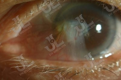 Dr Jimmy Lim JL Eye Specialists Pterygium Cornea Left Eye