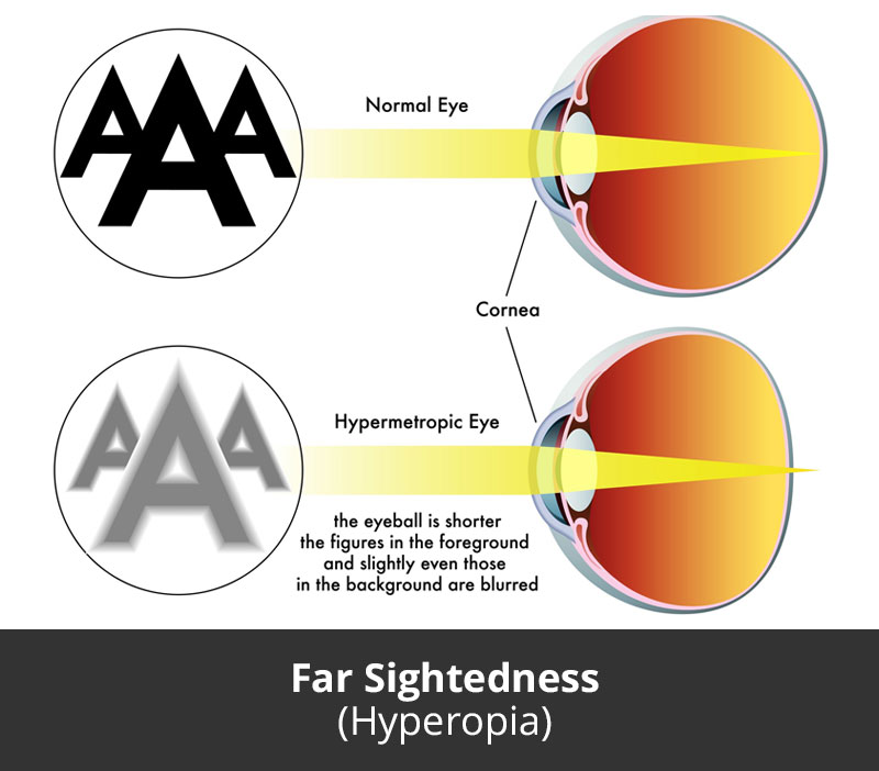 Dr Jimmy Lim JL Eye Specialists Far Sightedness Hyperopia Chart