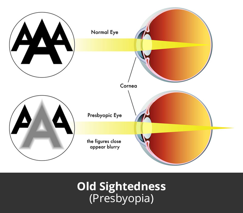 Dr Jimmy Lim JL Eye Specialists Old Sightedness Presbyopia Chart