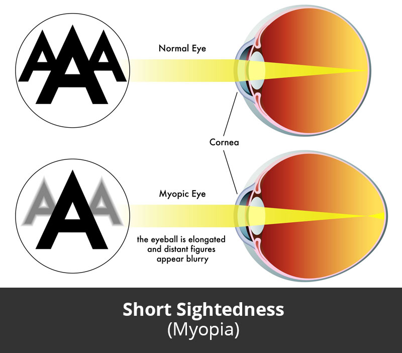 Dr Jimmy Lim JL Eye Specialists Short Sightedness Myopia Chart